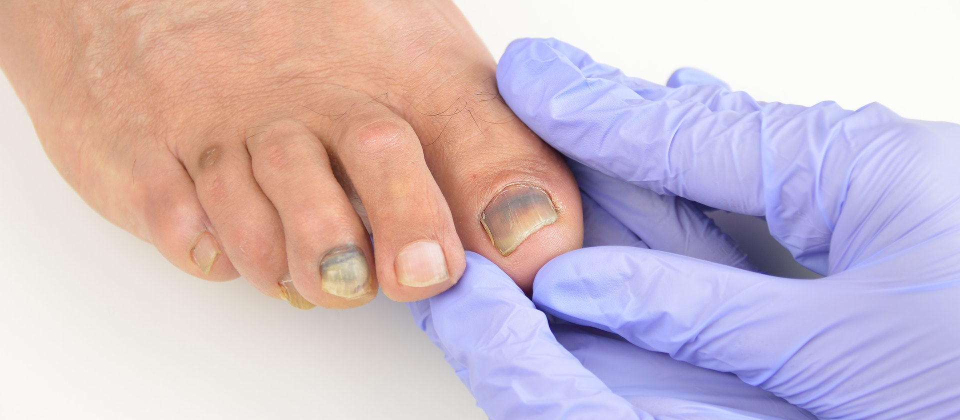Have You Ever Thought About Toenail Fungus? You Must Know!