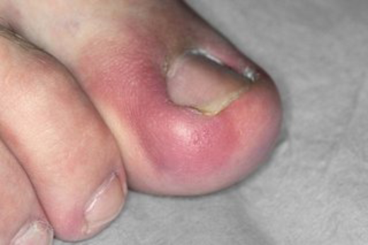 Can Toenail Fungus Cause Blisters
