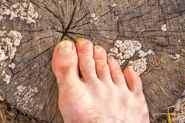 Common kinds of nail fungus and how to find them
