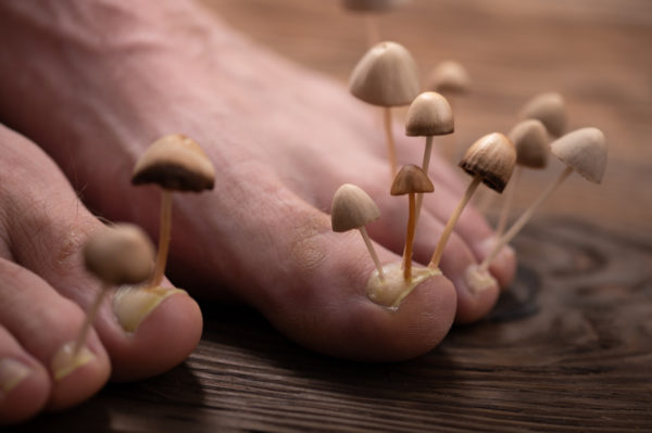 How to treat and prevent fungal nail infections