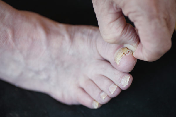 Can You Cure Toenail Fungus in 7 Days: From The Beginning Stage